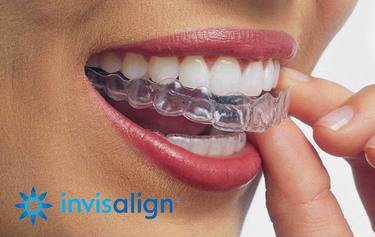 NEW YEARS SPECIAL - $1000 Off Invisalign