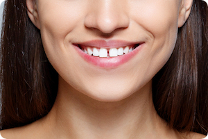 Can Braces Fix Gaps in Teeth